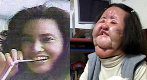 Botox Side Effects Dropfire