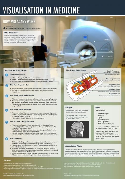 how-mri-scans-work_50290d26a8cb9_w1500